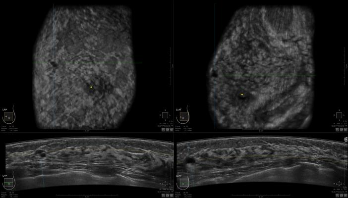 rsna 2013 mammography ultrasound systems women's healthcare GE invenia ABUS
