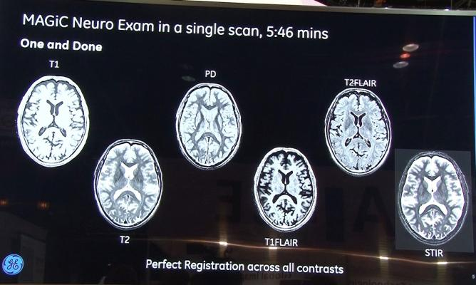 Quality of MAGiC Brain Scans Non-Inferior to Conventional MRI