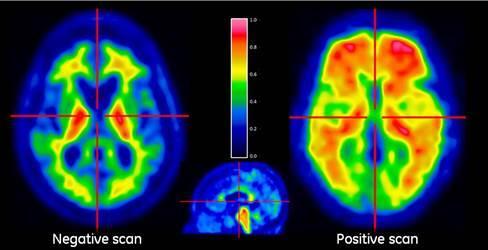Alzheimer's, tau PET tracers, positron emission tomography, dementia, research