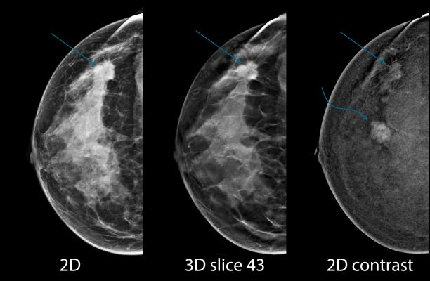 contrast enhanced tomosynthesis Contrast-enhanced mammography in clinical practice: using i-view software the objective of this 75 minute workshop is to provide participants with a basic knowledge.