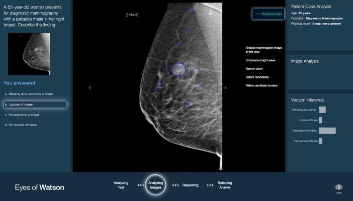 deep learning, artificial inteligence, medical imaging, Signify Research market report, 2021