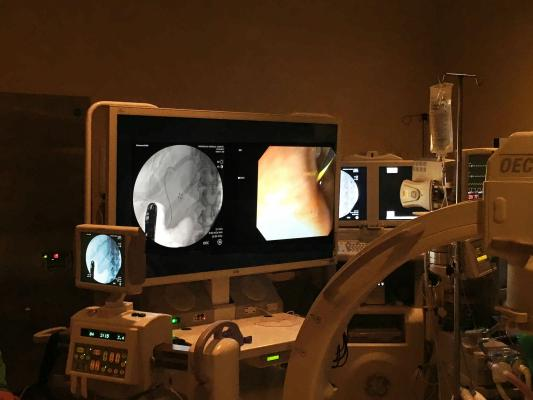 Image Diagnostics Inc., ilex55, mobile multimodality monitor system, procedure navigation, flat panel displays, RSNA 2017