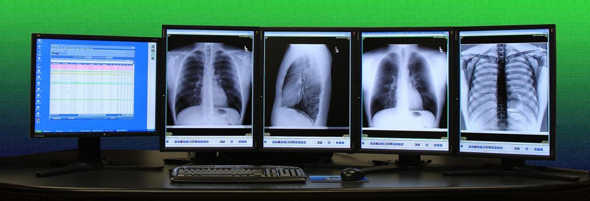 Intuitive Imaging Informatics LLC ImageQube FDA Clearance