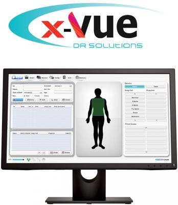 JPI Healthcare Solutions, X-Vue DR Solutions, digital radiography, retrofit, X-ray, RSNA 2016