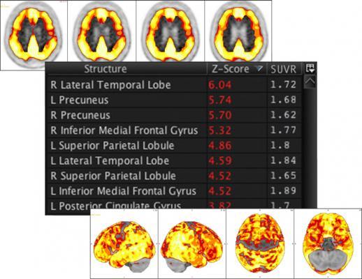 Amyloid analysis