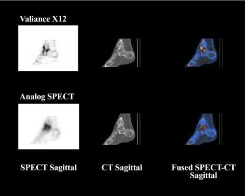 Valiance X12, SPECT/CT, CZT detectors, clinical trial