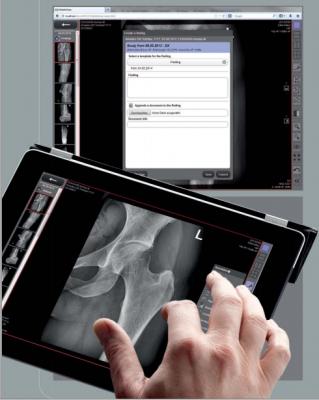 Leonardo DR nano system, X-ray systems, Digital Radiography systems