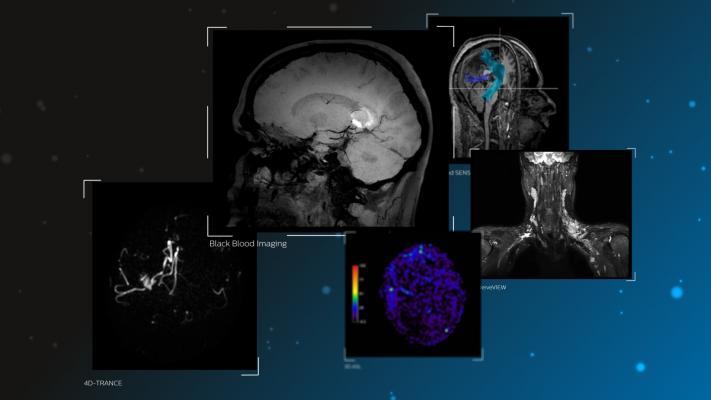 neurological disorders, MRI