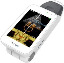 Accuro, handheld ultrasound, Rivanna Medical, spinal anesthesia guidance, FDA