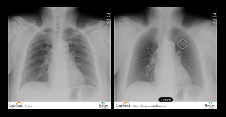 ClearRead Software Improve X-ray Images