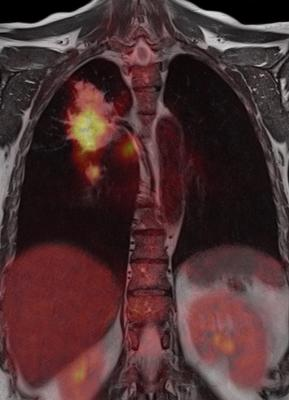 Median Technologies and the Nice University Hospital to Use AI in Lung Cancer Screening