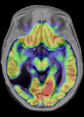 PET, neuroinflammation, C-11 PBR28, dementia, SNMMI 2015