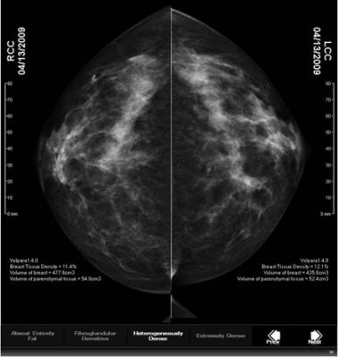 VolparaDensity, 3.1, tomosynthesis, mammography