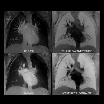 lung disease, MRI scans, contrast agent, hyperpolarized krypton