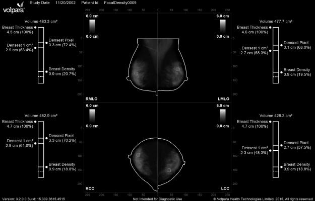 Volpara, Density Maps, breast density measurement, FDA clearance
