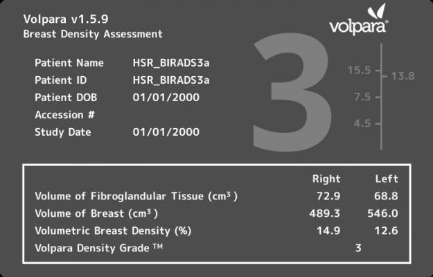 fibroglandular breast density, breast cancer screening performance, Breast Cancer Research and Treatment study, Volpara Density