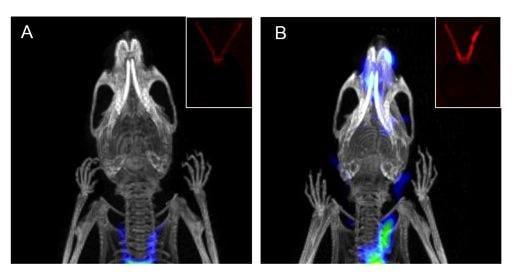 PET/CT, atherosclerotic plaque detection, Stanford University