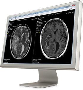 SyntheticMR, MRI software, SyMRI, REMyDI, automatic myelin volume measurement, RSNA 2016