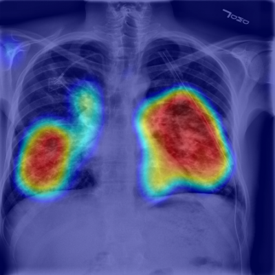RADLogics AI-Powered solution in use: chest X-ray of COVID-19 positive case with heatmap key image.