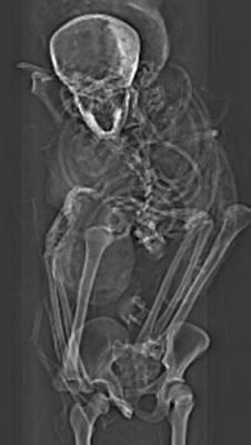 X-ray of pharaoh Seqenenre-Taa-II's torso