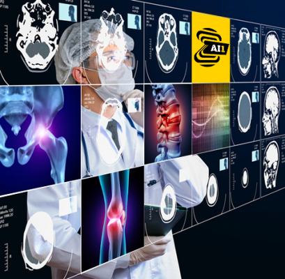 Building on its commitment to providing customers with artificial intelligence (AI) solutions that can be utilized across modalities in routine care, Canon Medical Systems USA, Inc. is partnering with Zebra Medical Vision to offer its AI1 automated imaging analysis solutions to help clinicians in the U.S. provide faster, accurate diagnoses for optimized patient care