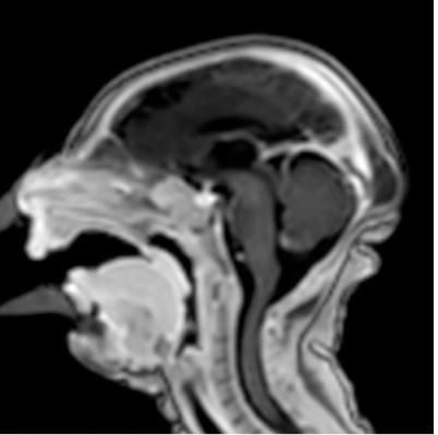 Zika virus effects, radiology studies, CT, ultrasound, MRI, RSNA 2016