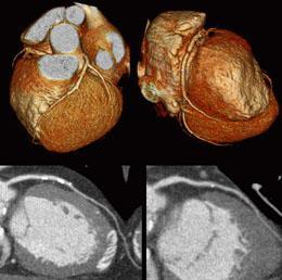 ct-angiogram-plaque