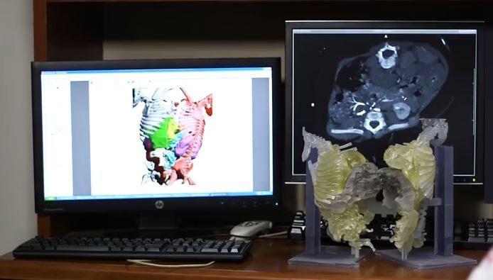 3-D printing, CT dataset, conjoined twins, surgical separation, physical model