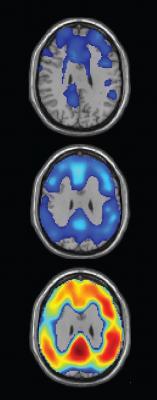 Biopharmaceuticals Inc. Clinical Study Alzheimer's Beta Amyloig