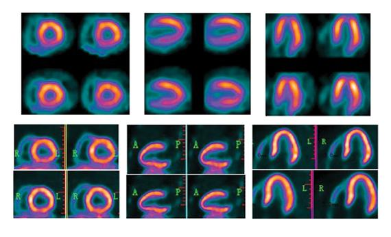 PET vs. SPECT, nuclear imaging advances with BFPET