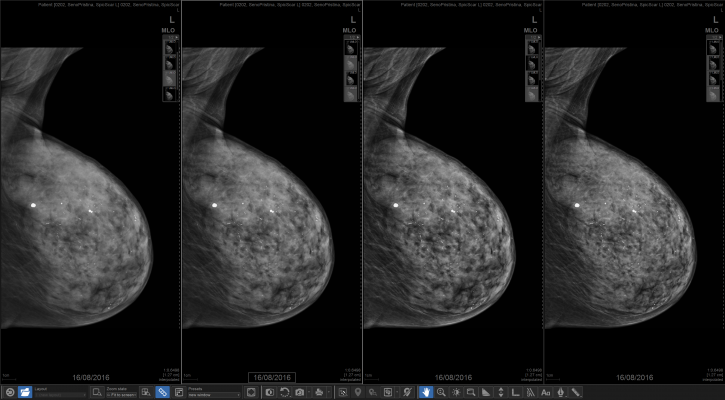 ge mammography tomosynthesis