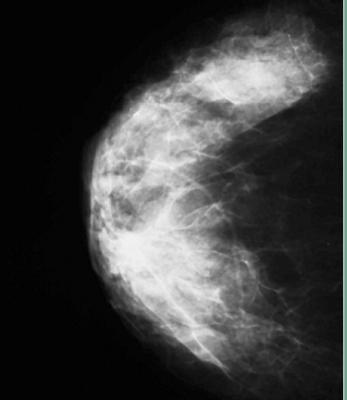 dense breast inform, dense breasts