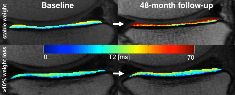 RSNA 2015, MRI study, weight loss, knee cartilage degeneration