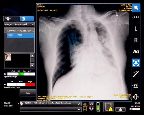 GE's smart algorithm alerts technologist to possible complications in a chest radiograph. The combined algorithm and portable X-ray unit was shown as a work in progress at RSNA 2017.