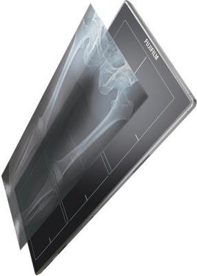 flat panel detector, Fujifilm, FDR DEVO, DR, digital radiography