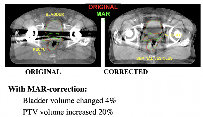 Metal artifact reduction led to a 20 percent increase in the planning target volume (PTV) in this prostate cancer case from Henry Ford Health System. The volume of the healthy bladder tissue to be spared was also reduced by 4 percent.