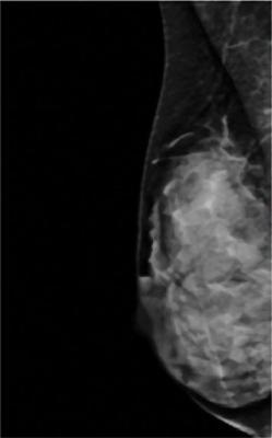 fibroglandular density, dense breasts, dense breast tissue