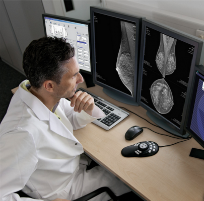 About 25 percent of screening patients and 60 percent of diagnostic patients do not have prior mammograms available for comparison at the time of their examinations due to the lack of interoperability or other restrictions preventing clinicians from accessing prior exams.