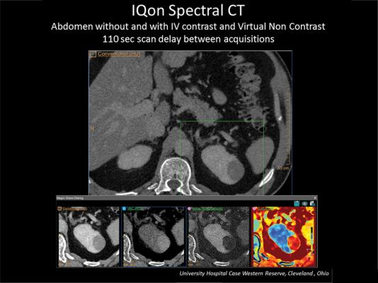 The abdominal scan to the left is demonstrating Spectral Magic Glass and the ability to create multiple spectral views to enhance a kidney mass. Spectral imaging enables iodine to be removed to create virtual non-contrast views.