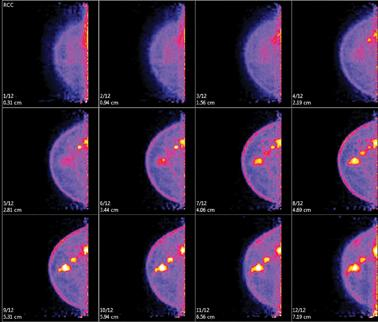 Example of molecular breast imaging (MBI) with breast cancer.