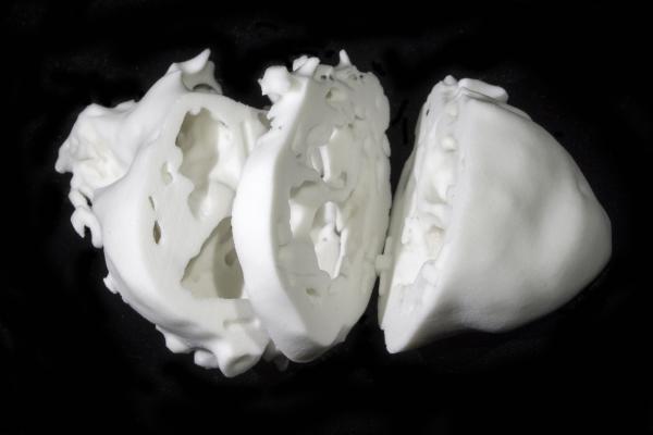 3-D heart model, congenital heart defects, cardiovascular surgery