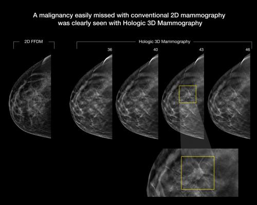 Combine Topics: Breast Ultrasound, Breast Tomosynthesis (3D Mammography), & Breast MRI
