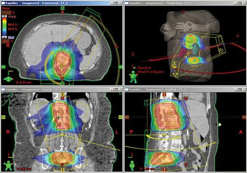 ASTRO, radiation therapy, proton therapy