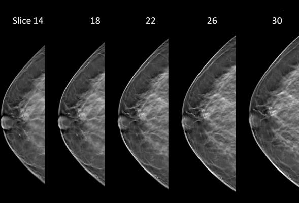 tomosynthesis, 3D mammography