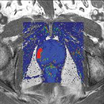 VividLook software helps spot cancer by imaging the speed of contrast flow into