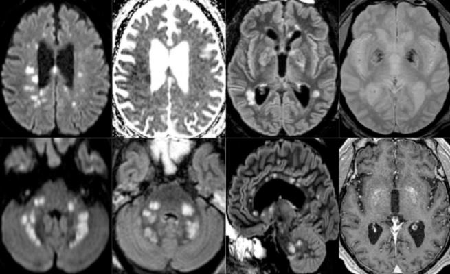 Figure 3. 65-year old man with pathological wakefulness after sedation. Non-confluent multifocal white matter hyperintense lesions on FLAIR and diffusion, with variable enhancement, and hemorrhagic lesions. Axial Diffusion (A, B), Apparent Diffusion Coefficient (ADC) map (C), axial FLAIR (D, E), sagittal FLAIR (F), axial Susceptibility weighted imaging (SWI) (G), and postcontrast T1 weighted MR images (H). Multiple nodular hyperintense Diffusion and FLAIR lesions localized in the white matter including the