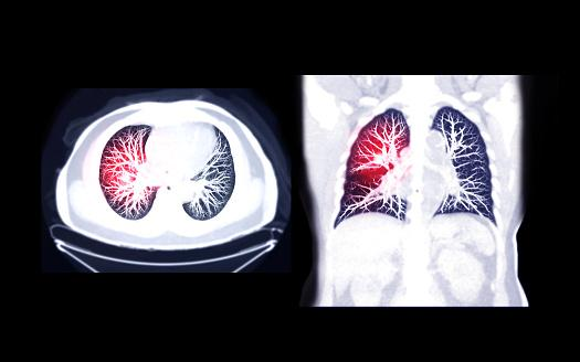 Research finds that a commonly used risk-prediction model for lung cancer does not accurately identify high-risk Black patients who could benefit from early screening