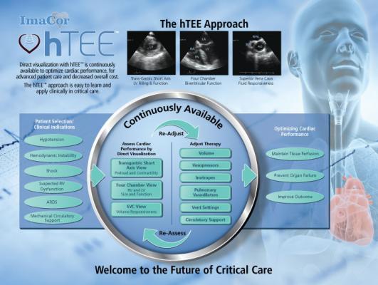 hTEE 24/7 Clinical Support Program ImaCor