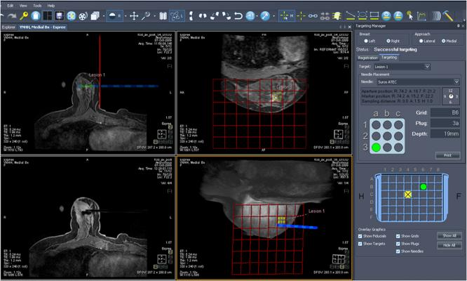 breast MRI, new AB-MR exam protocol, Via Radiology, cancer detection, dense breasts, women's health