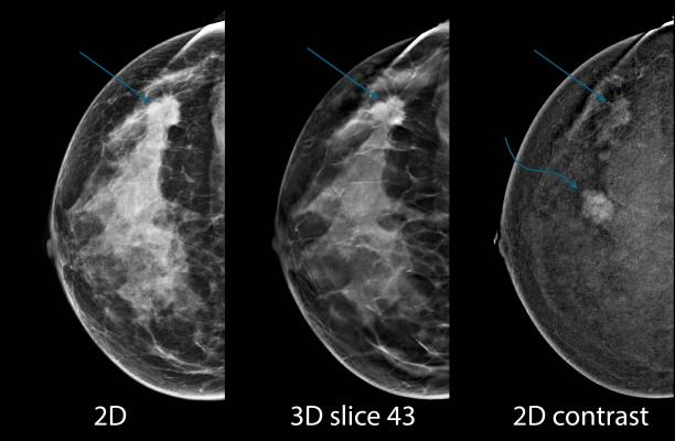 bilateral breast tomosynthesis